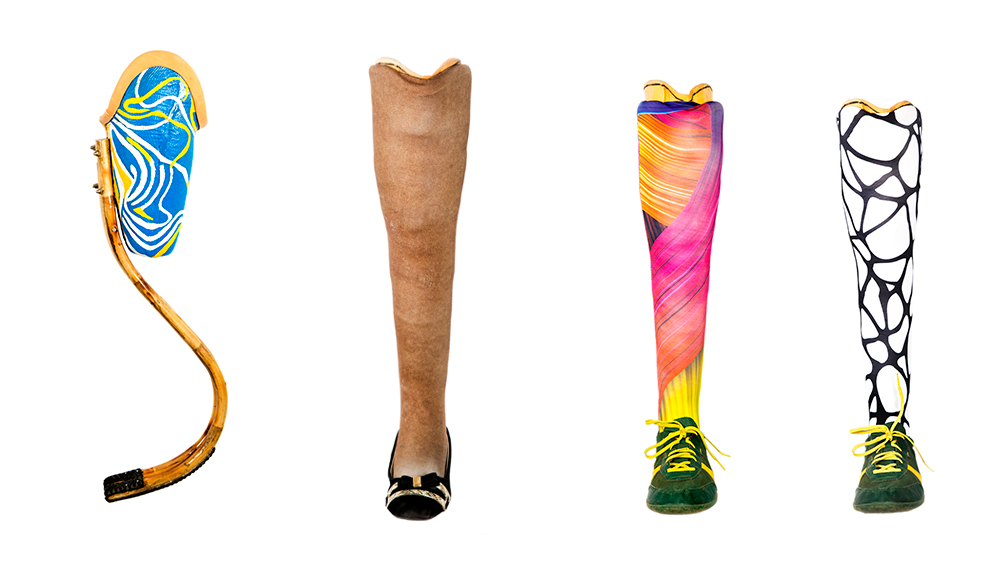 cost of a prothesis For patients with health insurance, out-of-pocket costs typically consist of doctor   however, coverage for certain types of prosthetics typically depends on the.